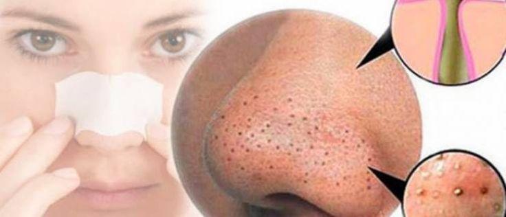 الرؤوس السوداء من المشاكل الجمالية التي يعاني منها الكثير من الفتيات والسيدات والتي غالباً ما تسبب لهن القلق والإحراج وتظهر عادة بسبب تراكم الدهون على خلايا البشرة وتتخذ من هذه الخلايا المكان الآم…