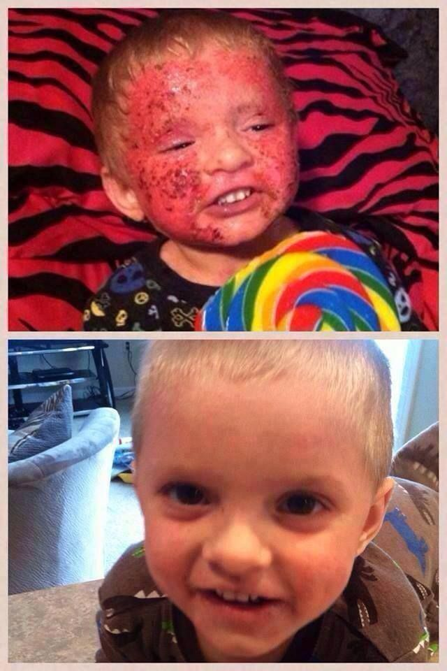 This poor little boy suffers with severe Eczema but after his parents put him on our ITworks program using the GREENS, GEL this little guy look fantastic do you suffer from Eczema contact me to get results like this little boy has gotten : wildwrap@shaw.ca or my Itworks Website wildwrap.com Or  www.wild-eyes.weeble.com