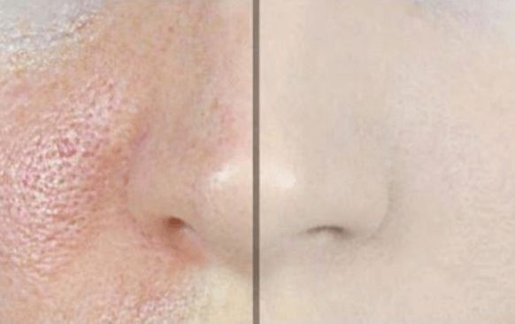 Remove Big Pores With Just One Ingredient!