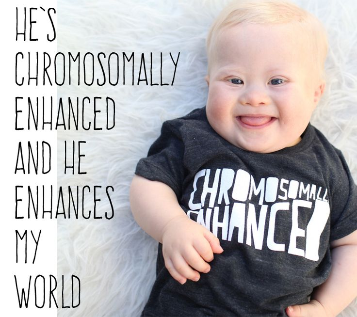 Happy World Down Syndrome Day! #downsyndrome #wdsd #wdsd2015