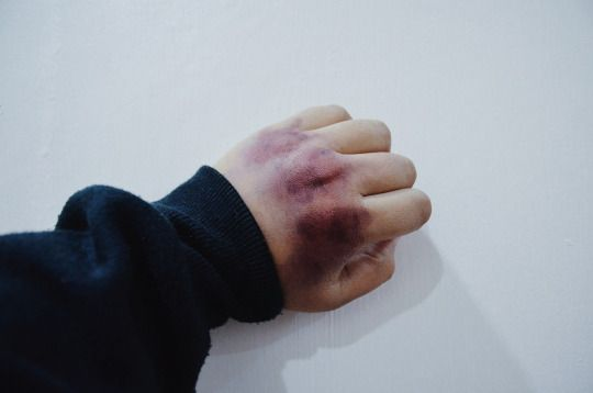 (Open:Dylan) I had one of my aggressive out breaks and I hadn't gotten my self to calm down once they got me in a room away from everyone else, I kept punching the wall not having anything else to hit. After I calmed down I sat on the ground and kept quiet looking at my knuckles I perked up hearing the door creak open