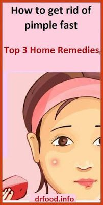 How to get rid of pimple fast | Top 3 Home Remedie…