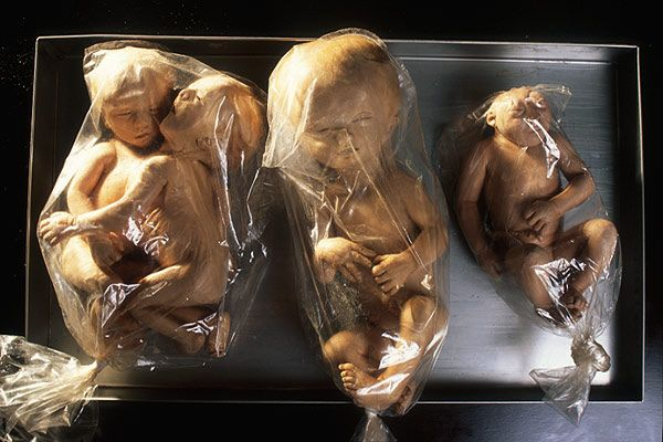 PERPETUAL DEFORMATION  Deformed human foetuses from  an anatomy collection have  been silicone plastinated by  anatomist Gunther von Hagens  and wrapped in plastic for  final gas-curing.  The specimens won't rot nor  smell. Even the soft down on  their skin is preserved.  Left to right: Siamese twins,  Hydrocephalus, Anencephalus.