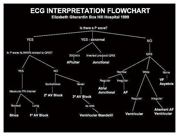 ECG Interpretation Flowchart
