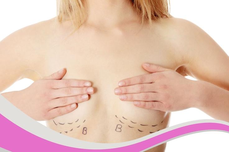 Se trata de una intervención quirúrgica que aumenta el volumen de los senos. La Mamoplastia es la solución ideal para casos como:  1. Personas con un volumen mamario insatisfactorio.  2.Tras la pérdida de volumen natural después de un embarazo o la pérdida de peso.  3.Para corregir una diferencia de tamaño en los senos.  4.Como cirugía reconstructiva tras un cáncer de mama.