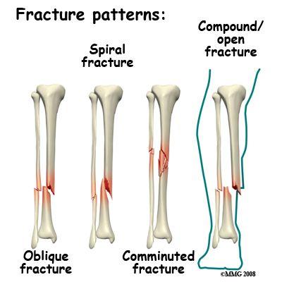 13 best broken tibia and fibia bones images on pinterest | broken, Human Body