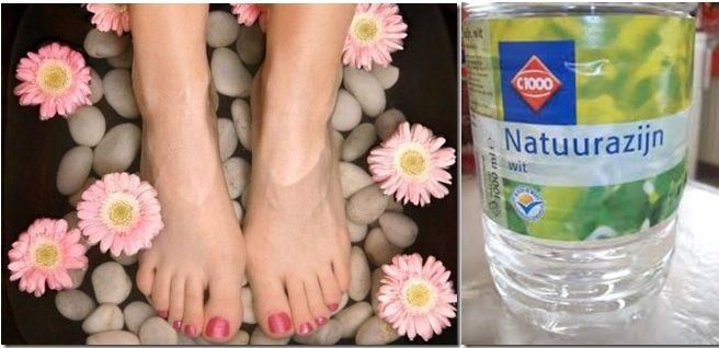 Heb je last van zweetvoeten?  Zet je voeten ongeveer 15 minuten in een voetbad van warm water en natuurazijn. Droog ze goed af. Wrijf ze daarna in met pure natuurazijn.