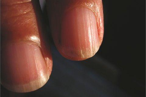 Under the Microscope: Onychorrhexis - Health - NAILS Magazine