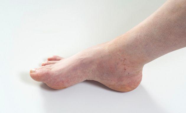 La hinchazón en los pies es un padecimiento muy frecuente en mucha gente, sobre todo en personas mayores, y puede ser causado por muchas razones distintas. Básicamente, la hinchazón en los pies y, a menudo en la zona de los tobillos y hasta un poco más arriba sobre las piernas, se produce debido a que la sangre se