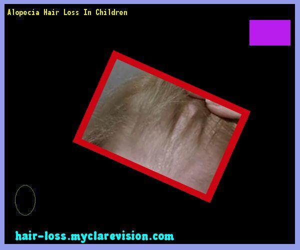 Alopecia Hair Loss In Children 110352 - Hair Loss Cure!