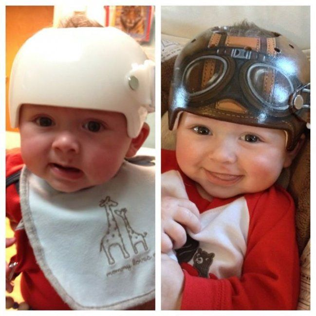 Artist transforms baby helmets into extraordinary art | #BabyCenterBlog