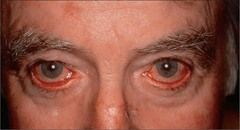Ocular Rosacea treatments    are varied. There are so many treatments that you can try. One of which is taking medications to eliminate infection and inflammation. Usually, the doctor will conduct first some assessment tests and other diagnostic procedures so that to rule out the exact problem in their patients.