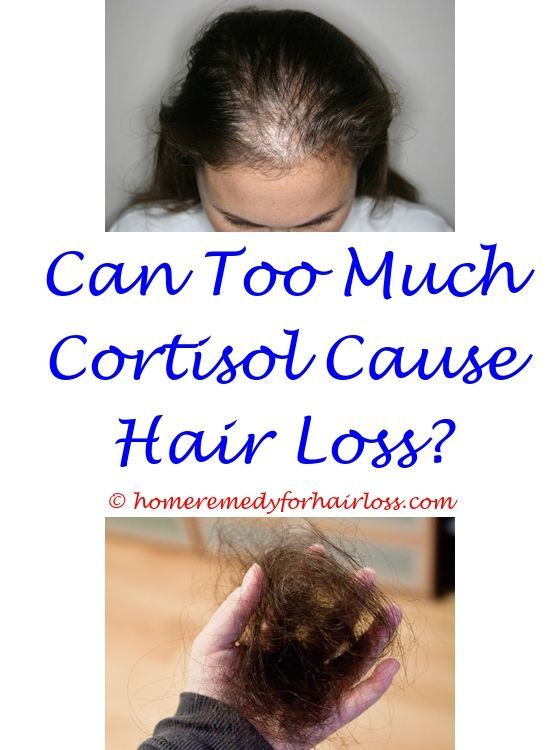 Low Iron Levels And Hair Loss Hair Loss Talk Nioxin Acupuncture