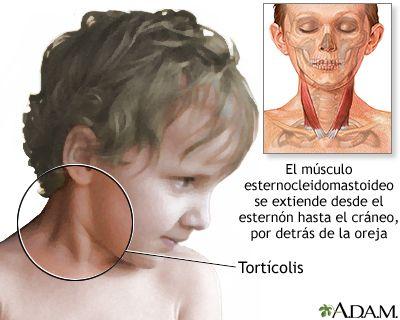 La tortícolis es un tipo de distonía en que los músculos del cuello, particularmente el músculo esternocleidomastoideo, se contraen involuntariamente y hacen que se incline la cabeza. Se puede producir sin causa aparente , puede ser genética (hereditaria) o adquirida como consecuencia de una lesión al sistema nervioso o a los músculos  https://www.facebook.com/291526021019645/photos/a.291697904335790.1073741828.291526021019645/301521283353452/?type=1&theater