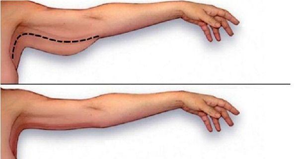 Overtollig vet aan je armen wordt vooral bij de vrouw als iets heel onaangenaams…