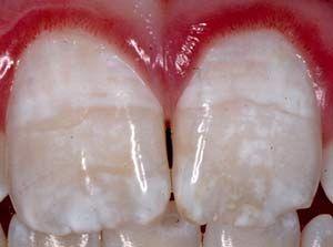Moderate fluorosis