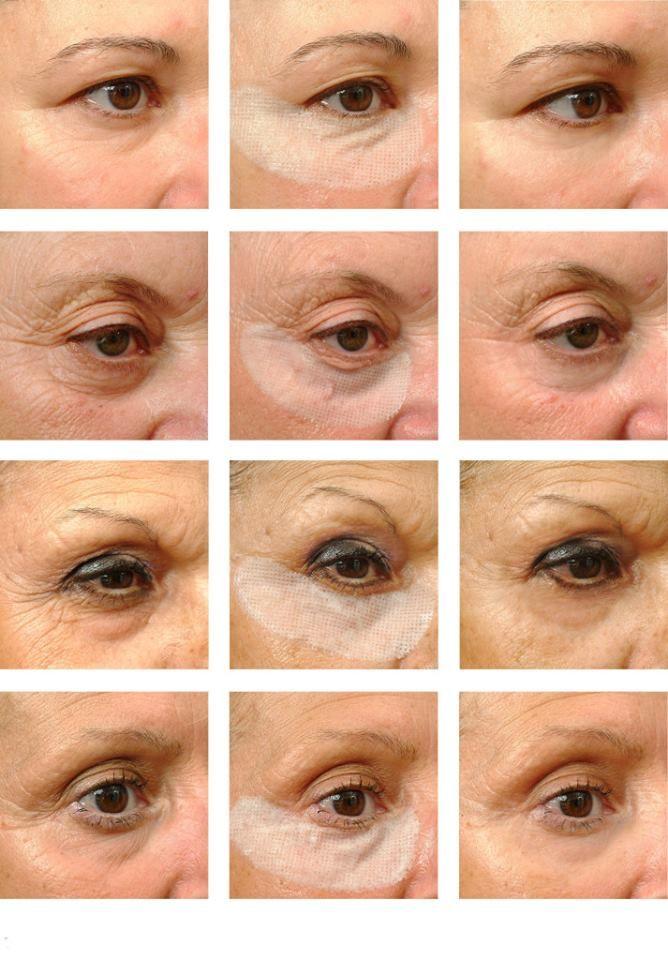 Ultra Effect Eye Patches 10 + 1 Stück Faltenfrei in wenigen Minuten  Einfach Patches aus dem Sachet entnehmen. Schutzfolie entfernen und Patch auf dem unteren Augenlid aufbringen. Patch 20 - 30 Minuten einwirken lassen, dann abnehmen. Überschüssige Creme sanft einklopfen/einmassieren.  Intensivbehandlung: 2-3 x pro Woche Erhaltungsbehandlung: 1 x pro Woche oder bei Bedarf-  https://leipzig.juchheim-methode.de/shop/kosmetik/ultra-effect-eye-patches/