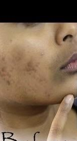 [Skin concerns] those who have done aha peels for pigmentation how many peels did it require to fade them completely? How did u space the peels? My skin tone is just like the picture and so are my pih ! Getting married in dec and i want to fade these fast !