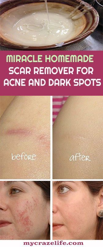 This DIY scar remover is significantly one of the …