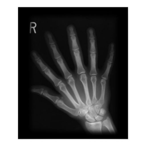 1000 Images About Xray On Pinterest Ankle Socks Dark