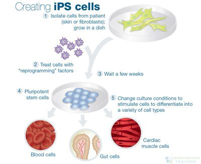Induced Pluripotent Stem Cells | iPS | iPSCs | hiPSCs - http://stemcellthailand.org/induced-pluripotent-stem-cells-ips-ipscs-hipscs/