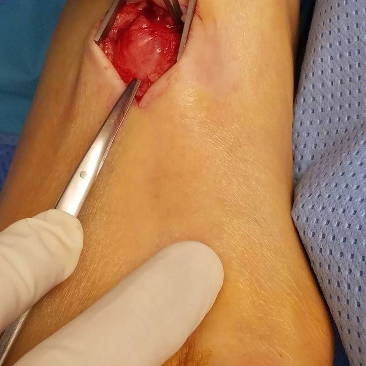 how to get ridof cysts on legs