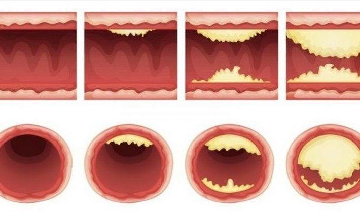 potraviny-precistenie-arterii