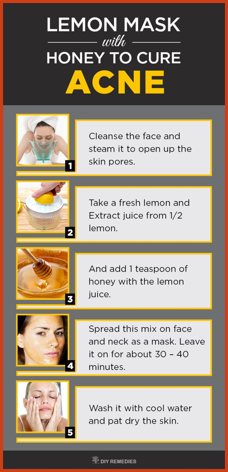 Homemade Acne Remedies - With at Home Acne Remedies, You Are Sure to Have Flawless Skin *** Read more at the image link. #gluta