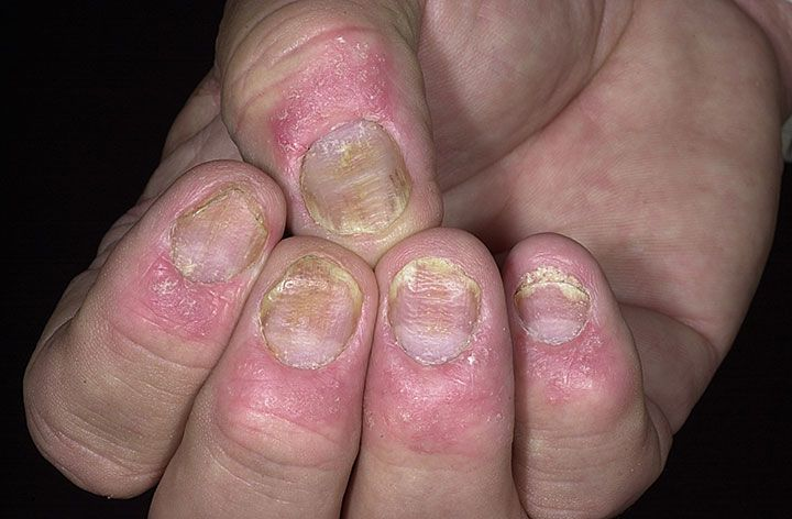 30 years old & having a problem of nail psoriasis & having skin flakes on my feet 1