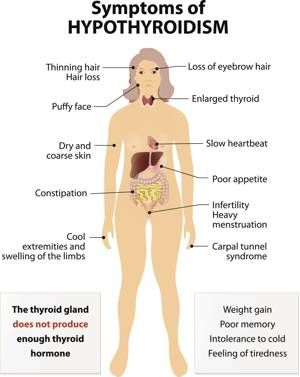Hypothyroidism - caused due to thyroid malfunctioning