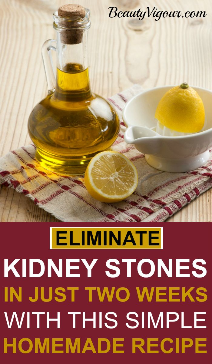 Eliminate kidney stones in just two weeks medicina for 902 10 23 43