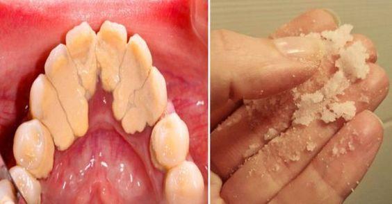 Enlever le tartre des dents chez vous en quelques secondes avec cette astuce