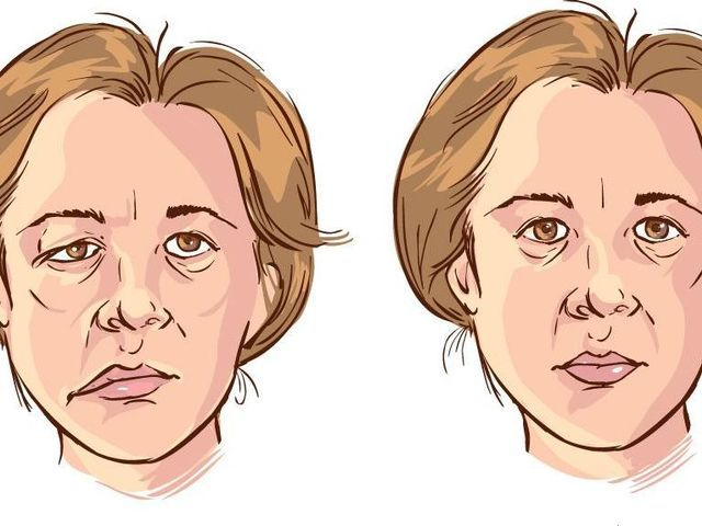 Bell's+Palsy+Facial+Exercises