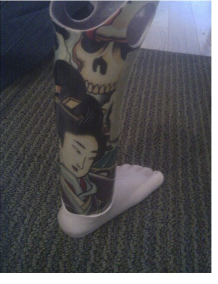 Shriners made this awesome leg for me. I had to have my foot amputated when I was one due to NF1. Thank You Shriners.