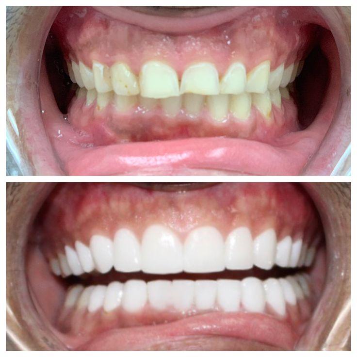 Best cosmetic dentistry veneers in miami cosmetic