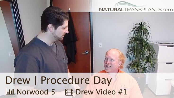 Hair Transplant Procedure Day | Baldness Cure with Dr. Tom Huebner of Maryland (Drew)
