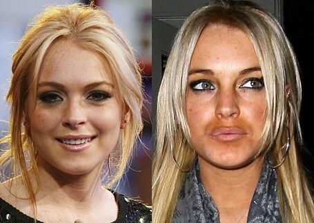 Lip surgery for Lyndsey Lohan resulted in duck face | Plastic  Reconstruction | Pinterest | Plastic surgery, Celebrity plastic surgery and  Lips