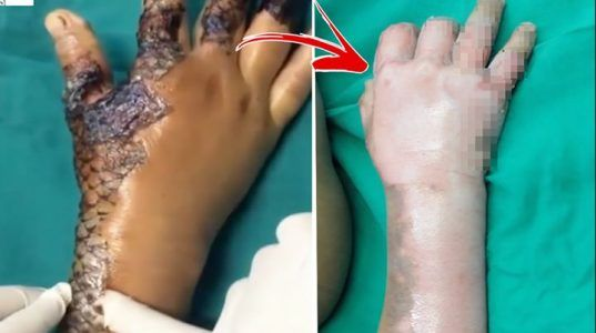 Fish scales heal womans burned body    Credit: Caters News Agency #news #alternativenews
