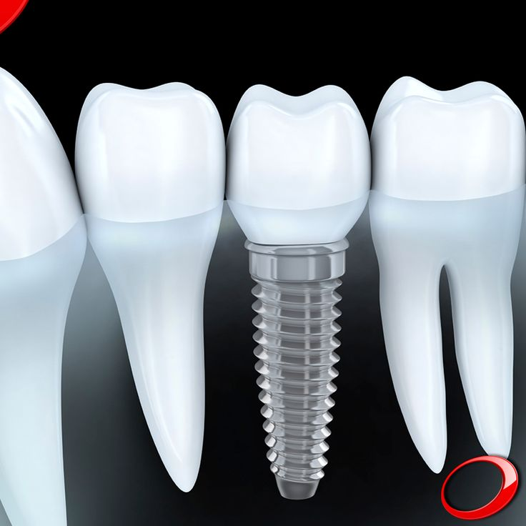 Do you know the 4 steps of Conventional Single-Unit Implants?  Step 1 - The Patient needs to restore a missing tooth and the dentist performs prior tests like x-rays; Step 2 -  The implant is placed. In some cases, at that moment, a provisional crown can be installed immediately. After that you need to wait some time for the complete healing of the region where the implant was placed.  Step3 -  The placement of a permanent crown.  Step 4 -  The end result is a functional tooth which is…