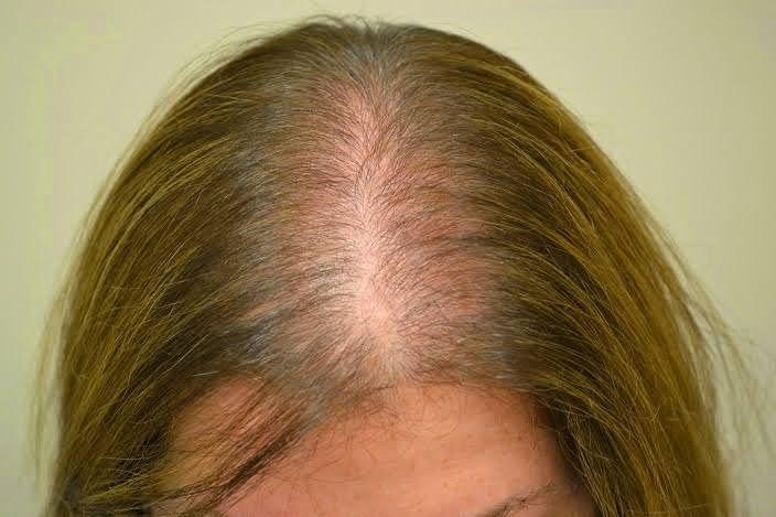 Alopecia é uma doença que se caracteriza pela perda de pelos e cabelos.