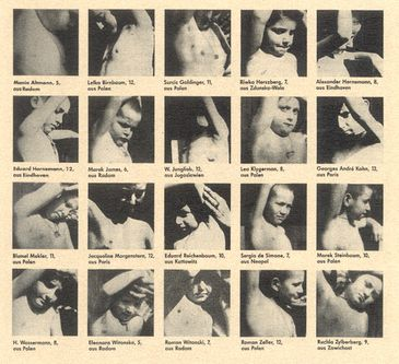 Nazi Human Experimentation:  Child victims of Nazi experimentation show incisions where axillary lymph nodes had been surgically removed after they were deliberately infected with tuberculosis at Neuengamme concentration camp.  They were later murdered.