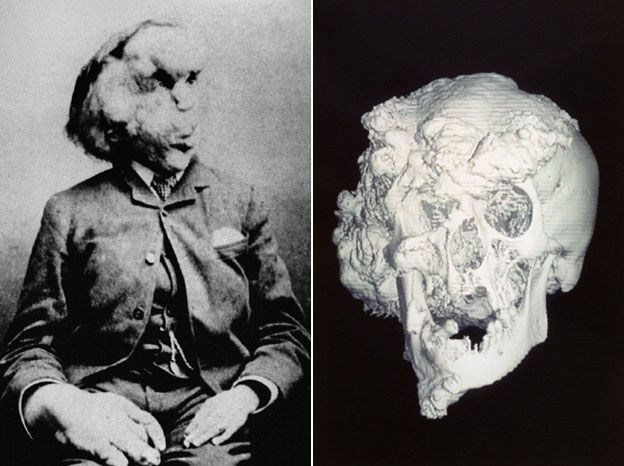 Photo of Joseph Merrick and his skull