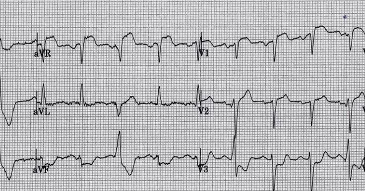 Five Primary Patterns of Ischemic ST depression, without ST elevation. Some are STEMI-e...