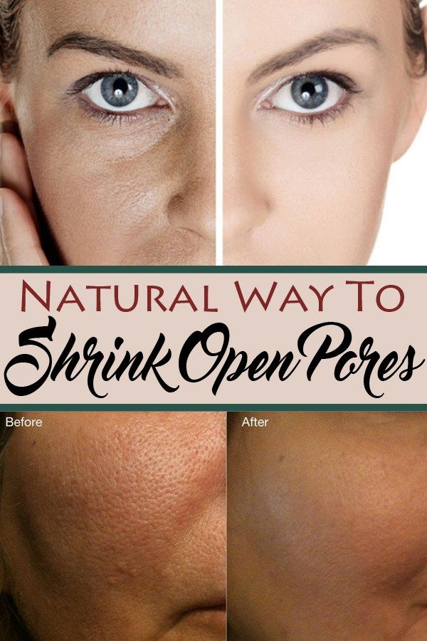 Natural Way To Shrink Open Pores