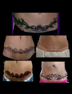 tribal tattoos to cover stretch marks on tummy   Scar Cover Up & Tummy Tuck Cover Up