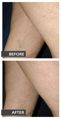 The best way to banish spider veins for good