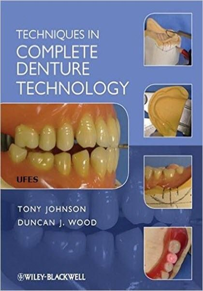 35 best dental ebooks images on pinterest free ebooks ebook pdf techniques in complete denture technology ebook pdf free download edited by duncan j wood and fandeluxe Images
