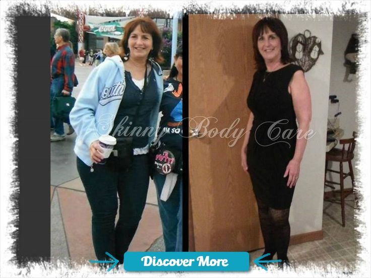 My name is Marjean. Before Skinny Fiber I tried a lot of different diets including HCG. I have a difficult time losing weight because I have hypothyroidism. Skinny Fiber really worked for me. It is as much about the weight as it is about the inches. After my 90 day challenge I was down 16 lbs and 6 1/4 inches. It made a lot of difference. I was wearing size 14 in my before picture and now I'm in a 10. I am so happy. Thanks Skinny Fiber! www.UnderSkinnyCo... #weightloss #skinny #health ...