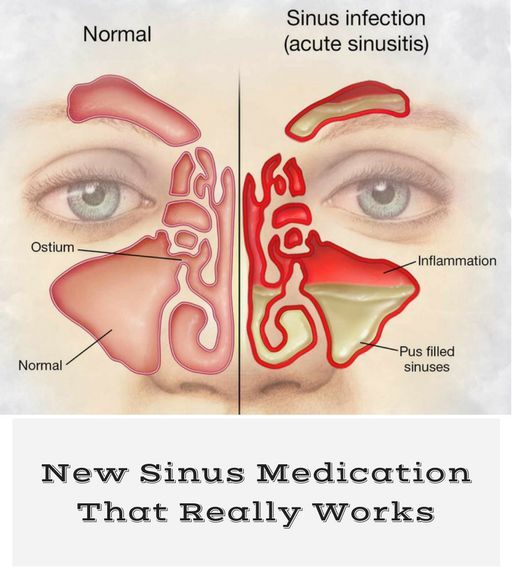 New Sinus Medication That Really Works | KEEP YOU FIT