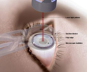 LASIK Surgery Abroad Medical insurance does not cover LASIK surgery. As the entire cost of the surgery has to be borne by the patient, it can be costly. The cost of LASIK surgery in the US is about $2,000.